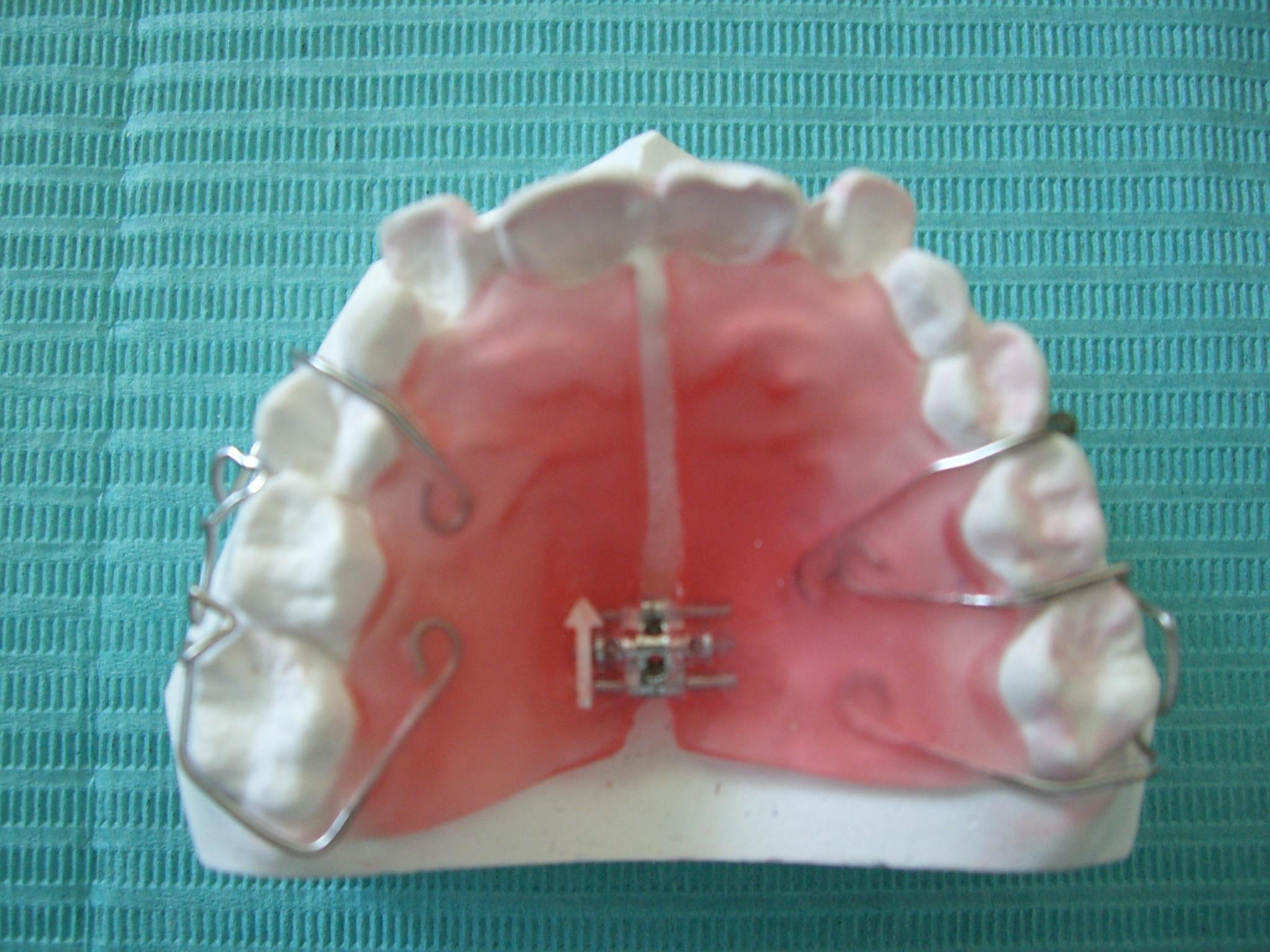 �@ この装置は取り外しが可能な装置で、側方に拡大したいときなどに使用します... 矯正歯科